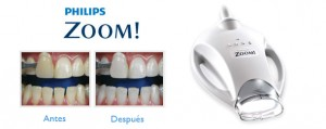 blanqueamiento-dientes-zoom-philips (1)